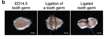 regrowing-teeth-sample-2